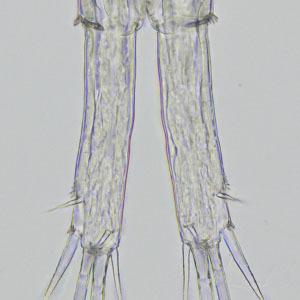 パラサイクロプス2.jpg